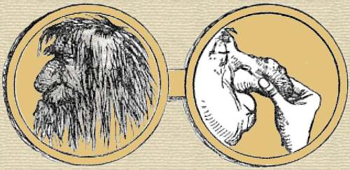 Cartoon medal. Side 1, a filthy face with matted hair. Side 2, man's face with grotesque swollen nose, pinched closed by fingers