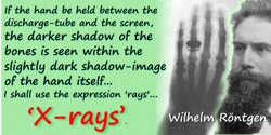 Wilhelm Röntgen quote: If the hand be held between the discharge-tube and the screen, the darker shadow of the bones is seen wit