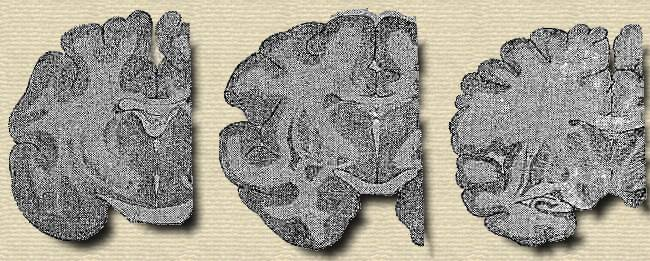 Cross Sections of the Brains of the Cat, Baboon, and Man